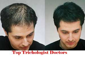 City Wise Best Trichologist Doctors In India